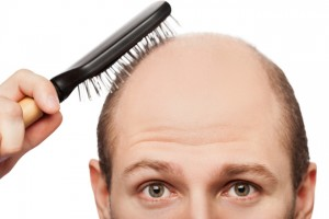 causas da queda de cabelos transplante capilar