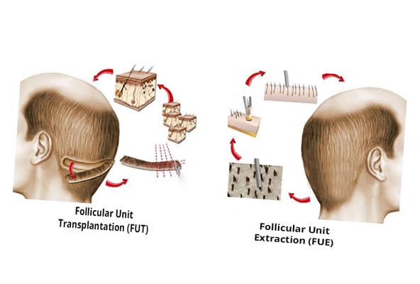 A diferença entre as técnicas FUE e FUT para transplante capilar
