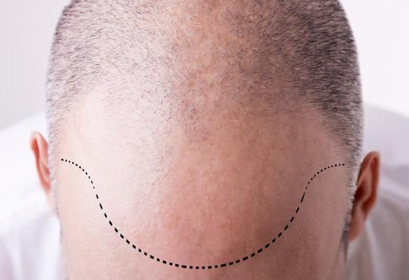Implante Capilar em Belo horizonte
