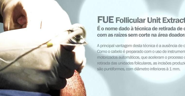 Transplante capilar técnica FUE em Curitiba