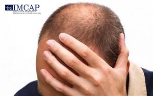 causadores da calvície e alopecia