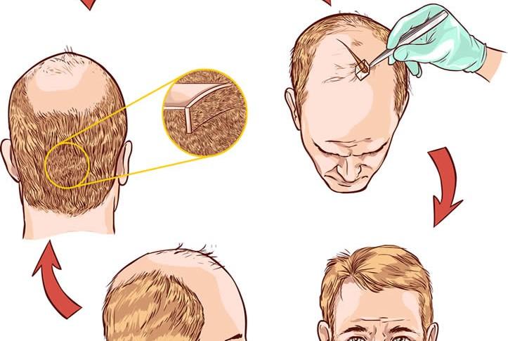 Quem pode realizar o Transplante Capilar FUE? Alopecia Androgenética e Calvície