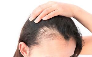 alopecia androgenetica calvicie feminina