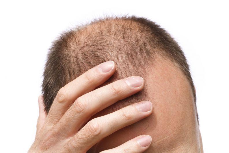 Queda de cabelos e o impacto na vida social