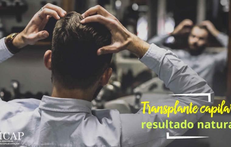 Transplante Capilar com Resultado Natural