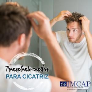 Transplante Capilar para Cicatriz