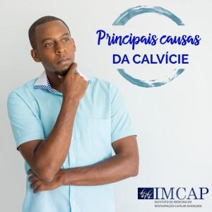 Principais causas da calvície