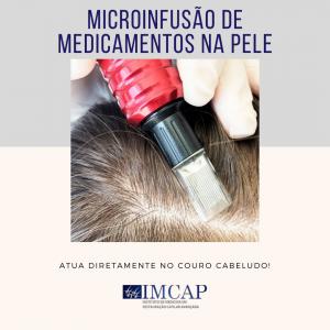 Microinfusao de Medicamentos na Pele