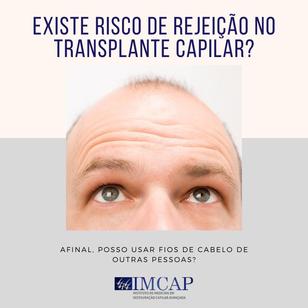 6-existe-risco-de-rejeicao-do-transplante-capilar