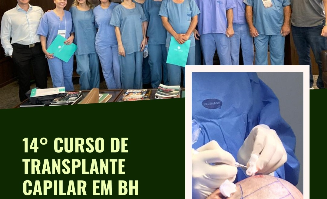 14° curso de transplante capilar em BH – Full immersion hands on técnica FUE