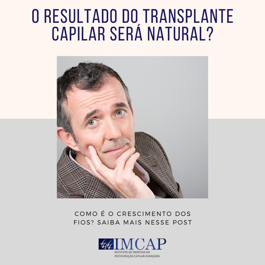 o-resultado-do-transplante-capilar-sera-natural-2