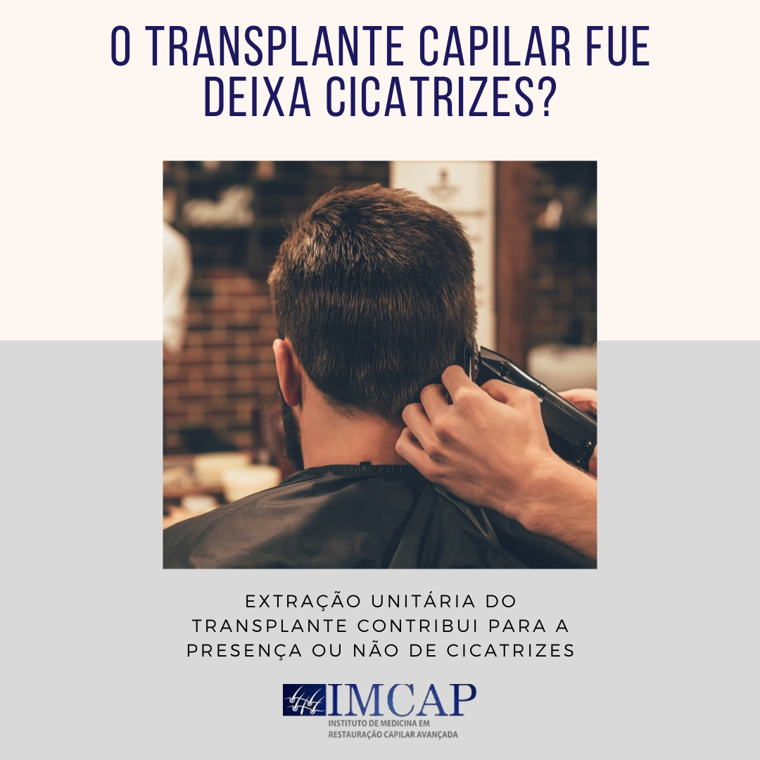 o-transplante-capilar-fue-deixa-cicatrizes-2