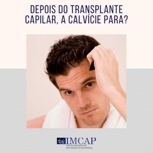 depois do transplante capilar, a calvicie para_