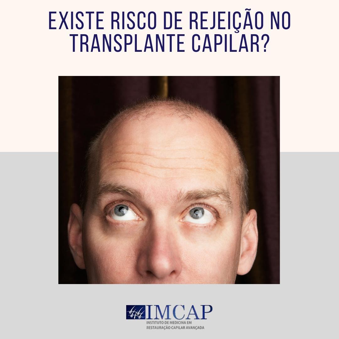 existe risco de rejeição no transplante capilar