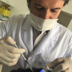 intradermoterapia-capilar-transplante-capilar