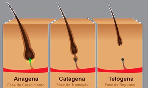 Tipos de queda de cabelos: alopecias, queda capilar auto-induzida e eflúvio telógeno