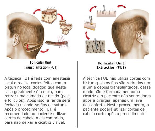 fue-fut-diferencas-2