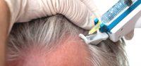 mmp-micro-agulhamento-para-calvicie-tratamento-2