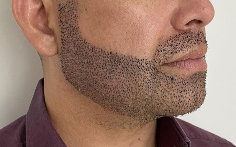 transplante-barba-2
