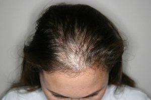 transplante-capilar-feminino-300x199