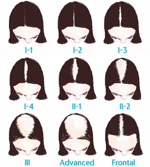 transplante-capilar-feminino-fases-da-calvicie-na-mulher-e1486271766999