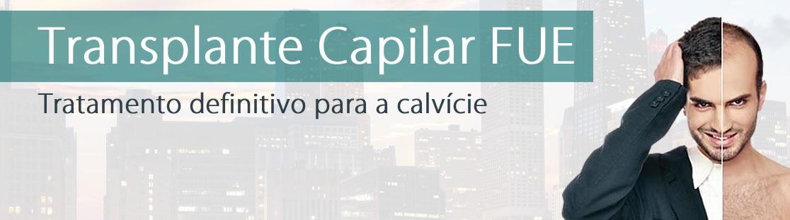 transplante-capilar-fue-1