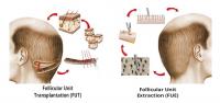 transplante-capilar-fue-versus-fut-2