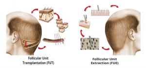 transplante-capilar-fue-versus-fut-3