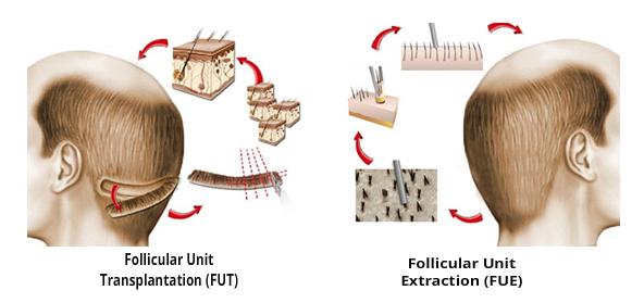transplante-capilar-fue-versus-fut