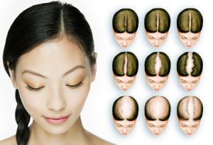 webmd_rf_photo_of_hair_loss_chart-300x204